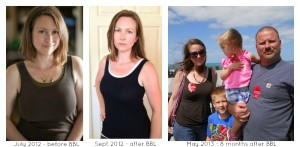 BBL before and after plus current photo May 2013